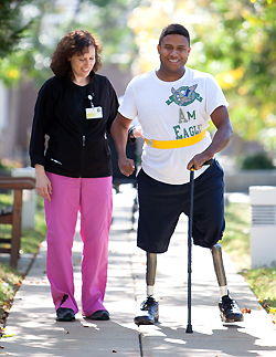 amputee is walking with staff