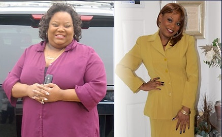 Vonda Bennett before and after bariatric surgery